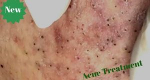 Blackheads Extraction on Face – Acne Treatment (Part 05)
