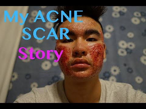 MY INSPIRATIONAL ACNE/FITNESS STORY- Connery Le