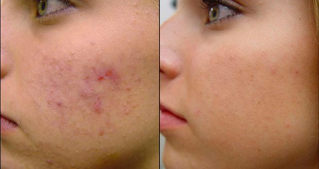 Ideas For How To Deal With Your Acne