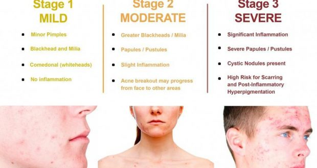 The Causes Of Acne And How To Treat It