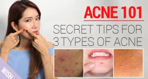 Advice For Taking Care Of Your Zits