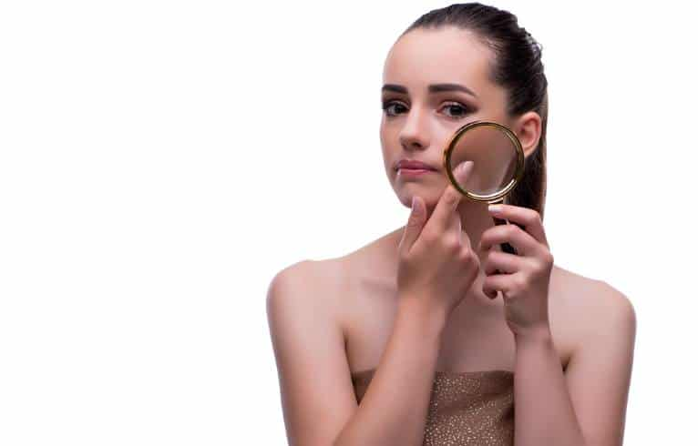Acne scars and hyperpigmentation