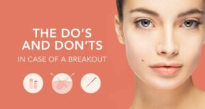 How To Make Zits A Thing Of The Past