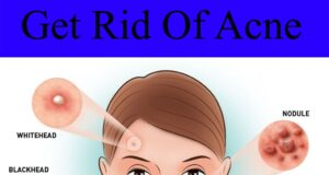 Easy Ways To Get Rid Of Acne