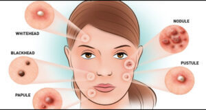 Breakouts Can Be Prevented With These Tips