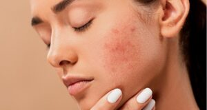 Control Your Pimples Today With These Tips